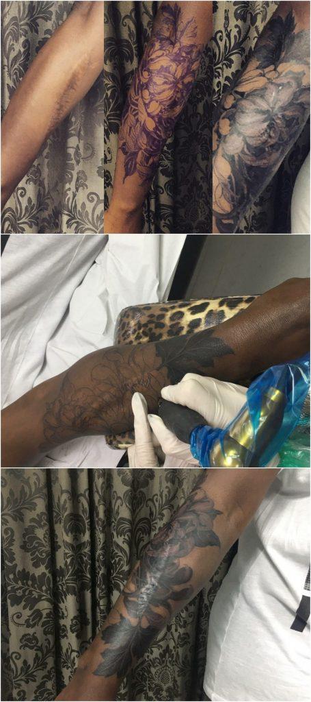 tattoo cicatrices, Cicatriz, tatuaje oncologico, Tatuaje médico-estético, operación cicatriz, micropigmentación, tattoo madrid, tratamiento cicatrices madrid, pigmentación Paramédica, pigmentación, camuflaje cicatrices, estrías, queloide, quemaduras, operación, disimular cicatriz