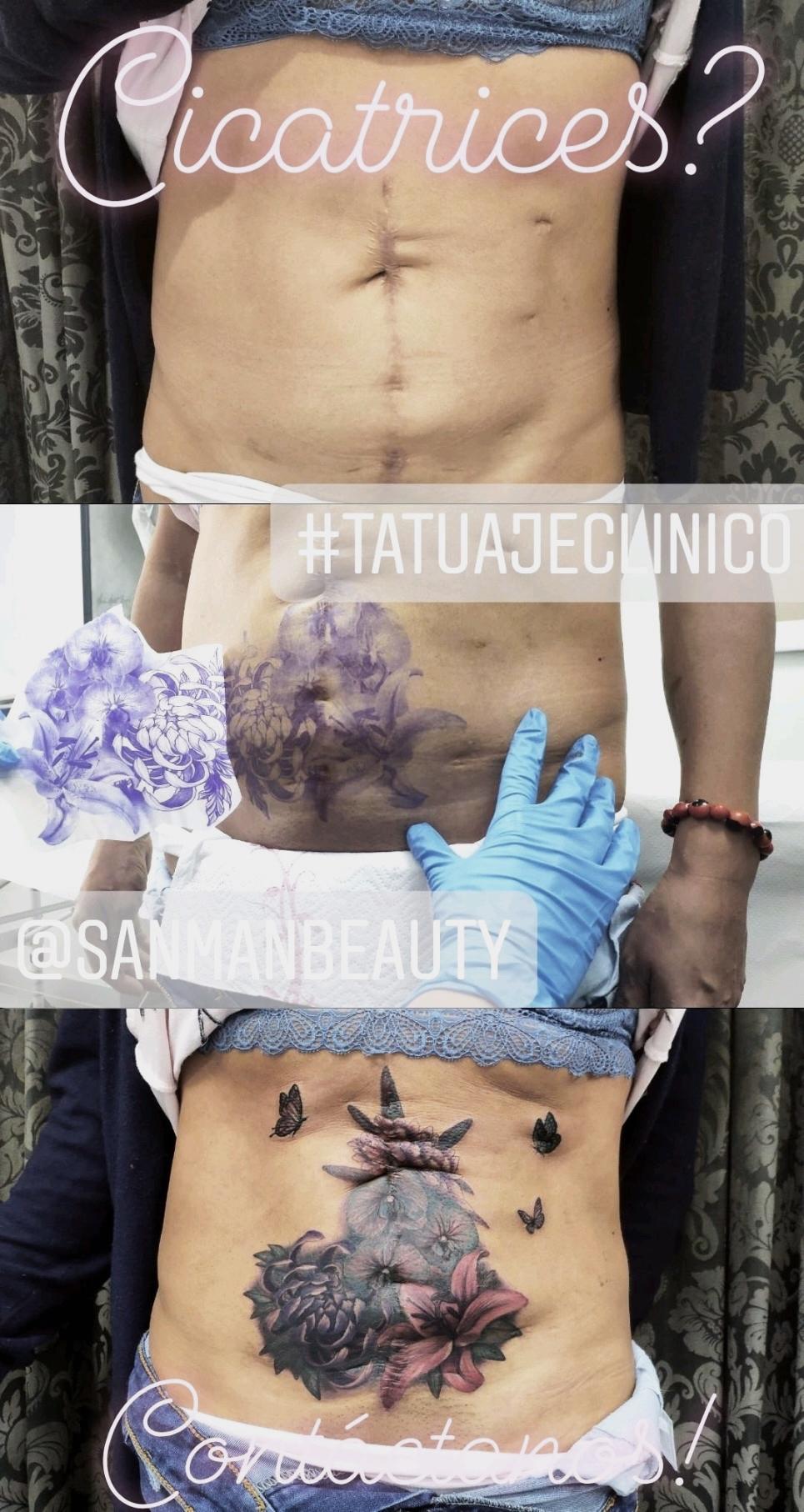 Cicatriz, tatuaje oncologico, Tatuaje médico-estético, operación cicatriz, micropigmentación, tattoo madrid, tratamiento cicatrices madrid, pigmentación Paramédica, pigmentación, camuflaje cicatrices, estrías
