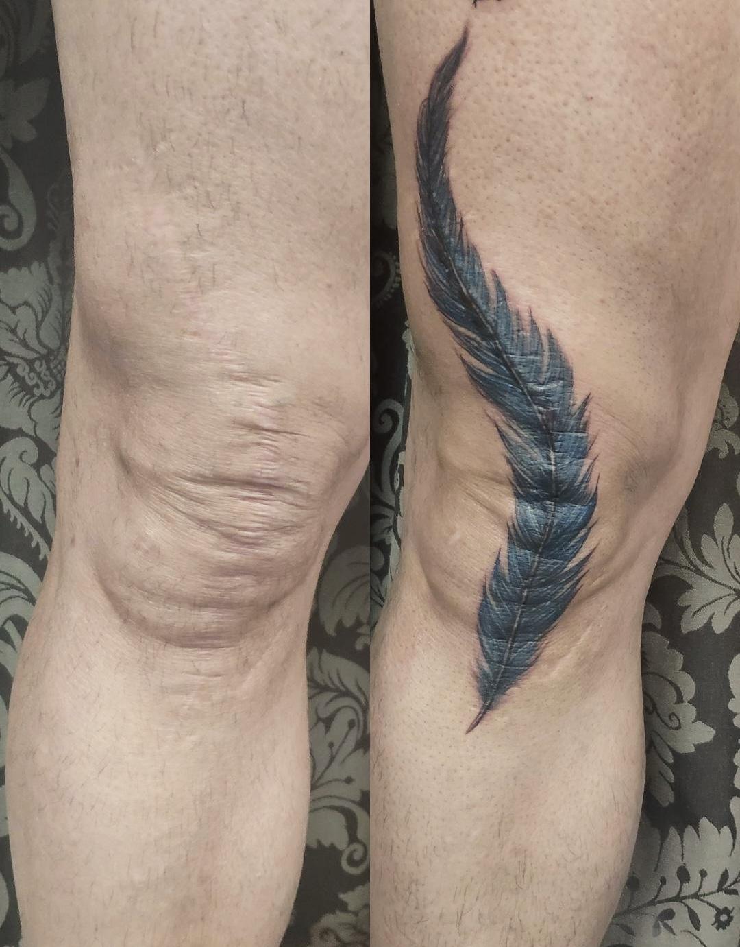 Cicatriz, tatuaje oncologico, Tatuaje médico-estético, operación cicatriz, micropigmentación, tattoo madrid, tratamiento cicatrices madrid, pigmentación Paramédica, pigmentación, camuflaje cicatrices, estrías, queloide, quemaduras, operacion rodilla