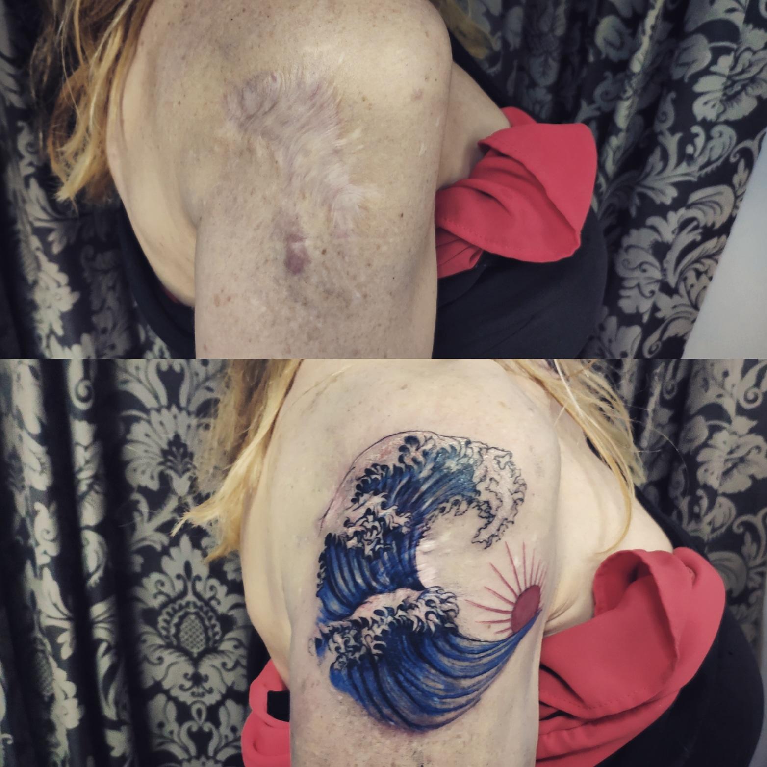 Cicatriz, tatuaje oncologico, Tatuaje médico-estético, operación cicatriz, micropigmentación, tattoo madrid, tratamiento cicatrices madrid, pigmentación Paramédica, pigmentación, camuflaje cicatrices, estrías, queloide, quemaduras