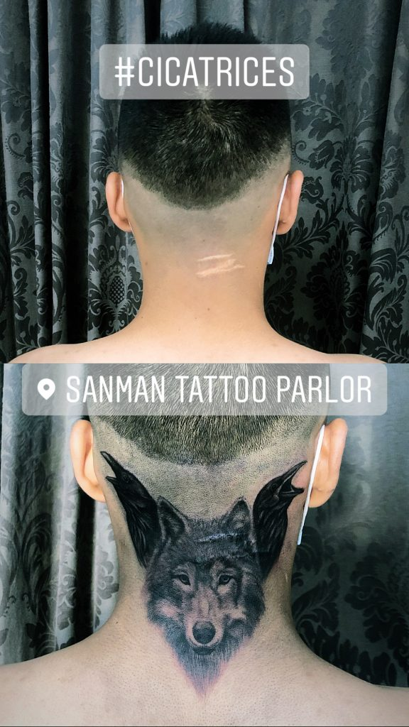 Cicatriz, tatuaje oncologico, Tatuaje médico-estético, operación cicatriz, micropigmentación, tattoo madrid, tratamiento cicatrices madrid, pigmentación Paramédica, pigmentación, camuflaje cicatrices, estrías, queloide, quemaduras, operacion